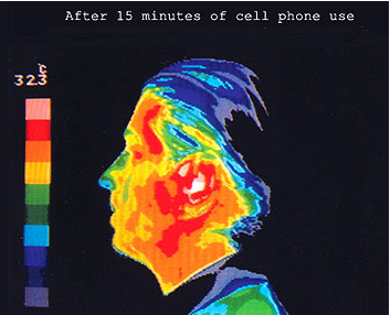 RF Effects on Brain Glucose Metabolism